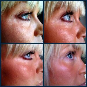 4 months of Nerium