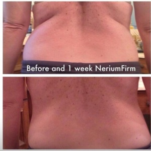 NeriumFirm Back 7 days