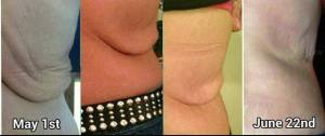 Nerium Firm Before and After 52 days