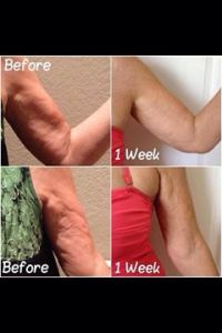 arm one week