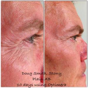 doug smith ba optimera 10 days