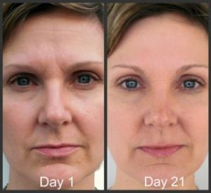 Woman Before and after 21 days